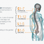 tetraplegia recupero funzioni