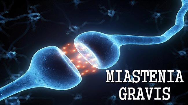 miastenia gravis sintomi